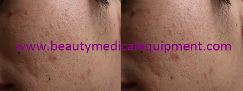 Acne scars,before and after treatment