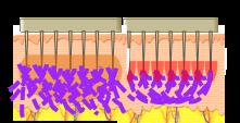 microagujas RF de oro