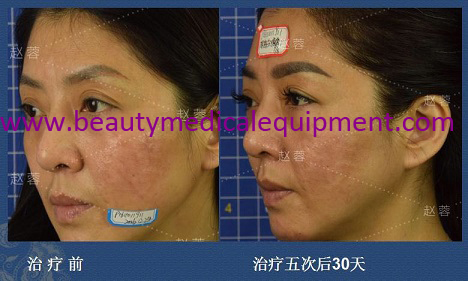Scar Skin Treatment Equipment