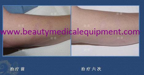 Hautnarbenbehandlung