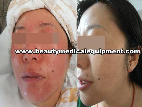 empfindliche Haut Behandlung Ausrüstung
