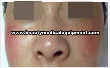 skin sensitive treatment equipment
