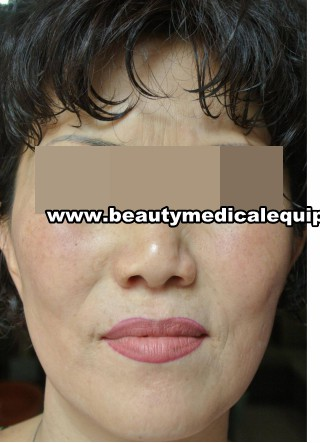 piel equipos de tratamiento sensible