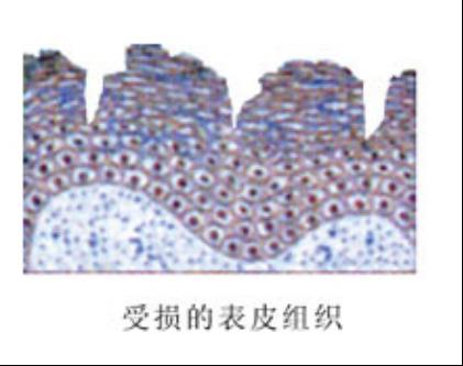 Поврежденные эпидермальный ткань