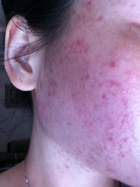Использование внешнего акне медицины делает кожу чувствительной