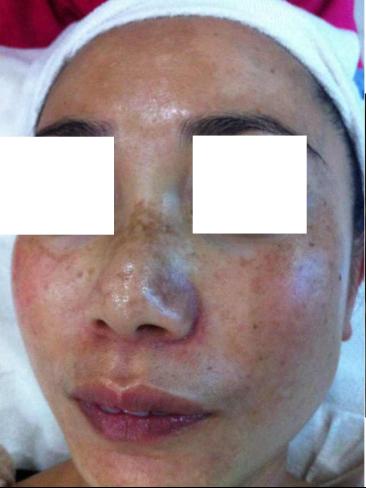 alergy piel después de blanqueamiento y láser