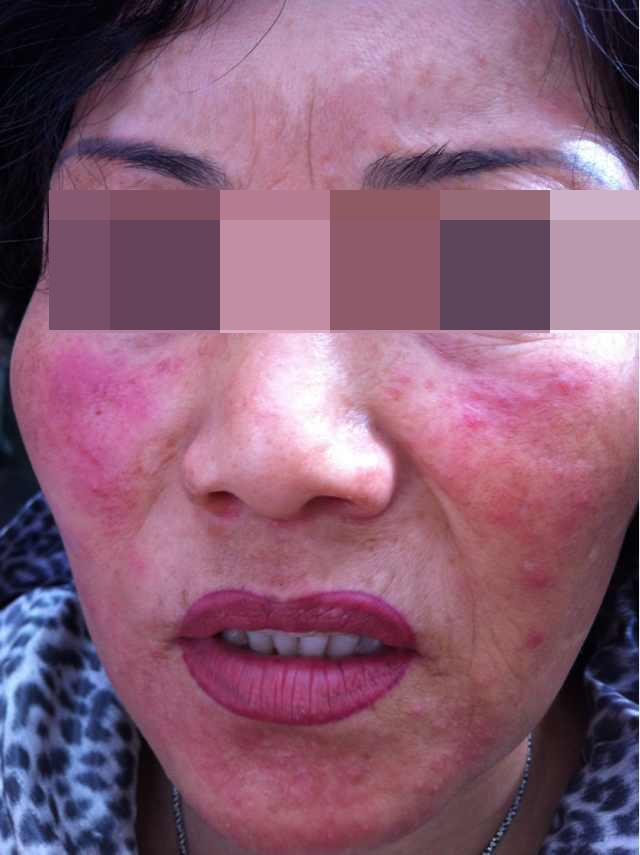 Гормонозависимая dermatitis.Skin истончение, телеангиэктазии, чувствительный.