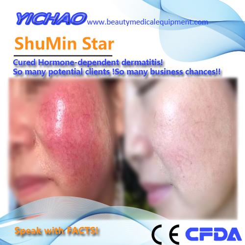 tratamiento de la dermatitis dependiente de hormonas