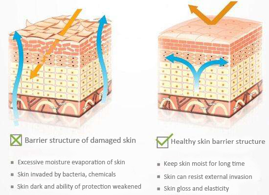 Skin brick wall structure