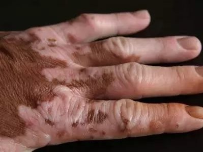 308nm traitement du vitiligo